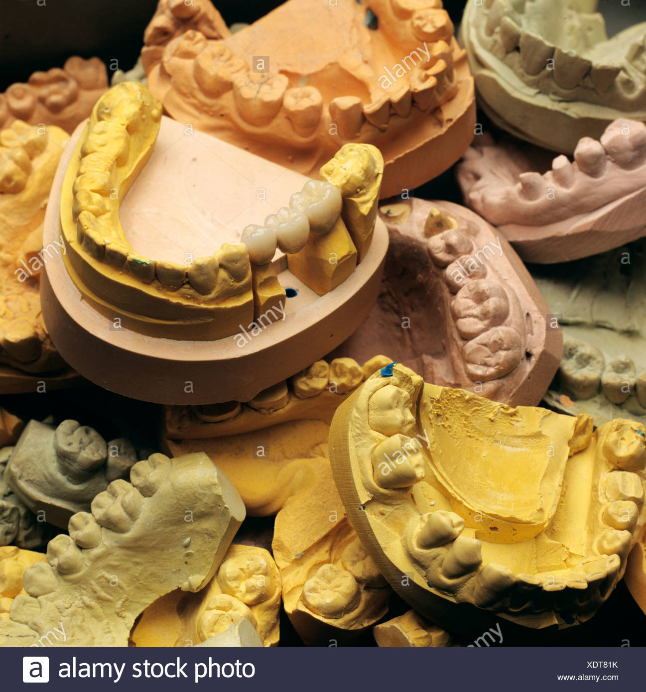 Plaster casts, models in a dental laboratory - Stock Image
