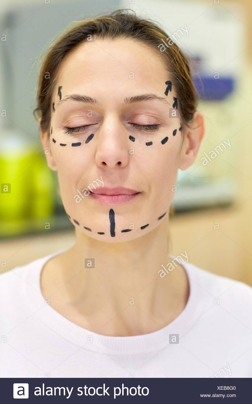 Facelift. Blepharoplasty. Rhytidoplasty. It involves stretching the facial skin in order to remove wrinkles. Before surgery it is necessary to mark Stock Photo