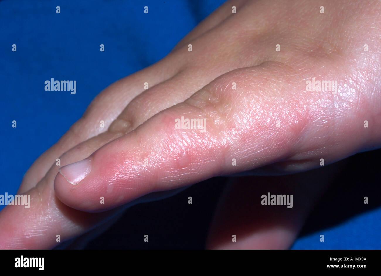 аллергия на гель как лечить