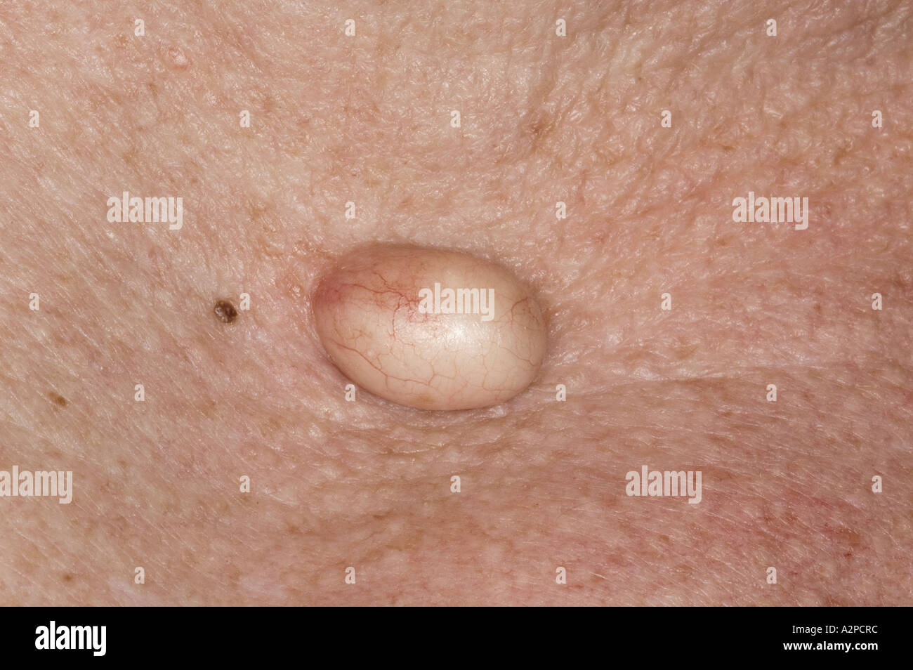 sebaceous cyst stock photo, royalty free image: 6041467 - alamy, Skeleton
