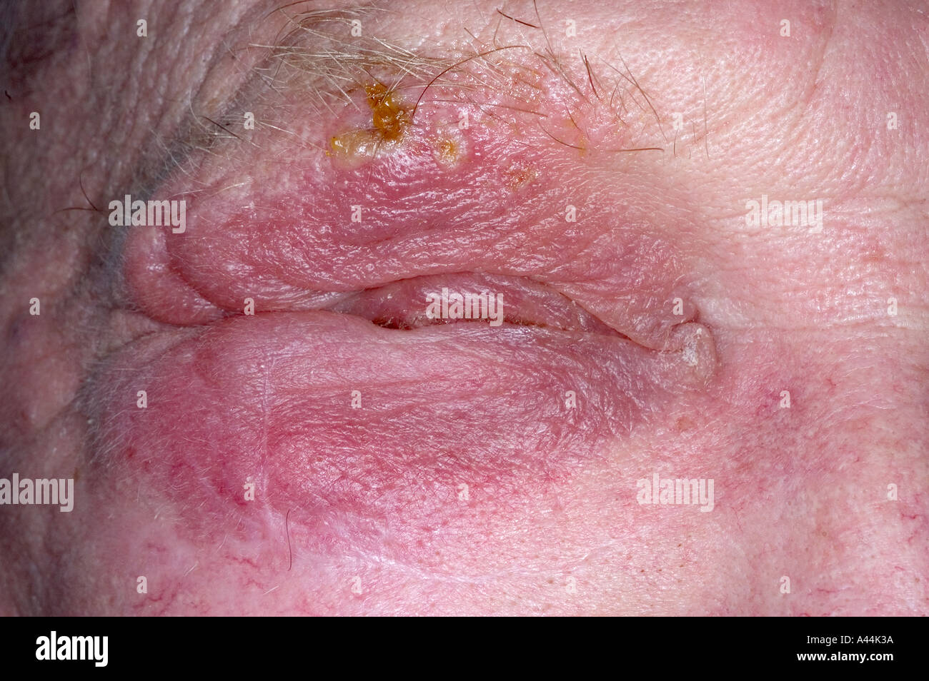 herpes rash on face