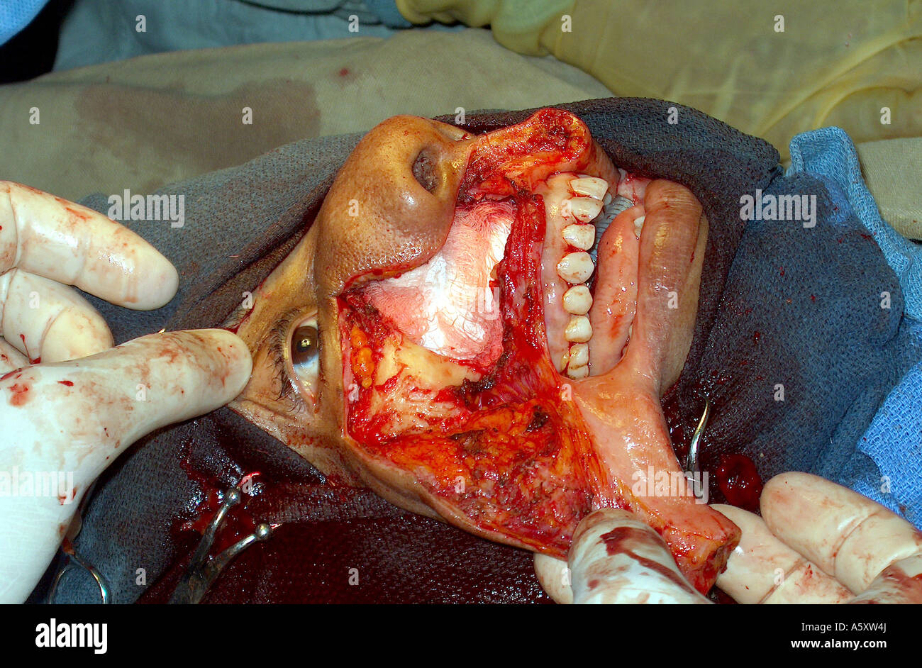 Hotttttt facial twitching and brain tumors can