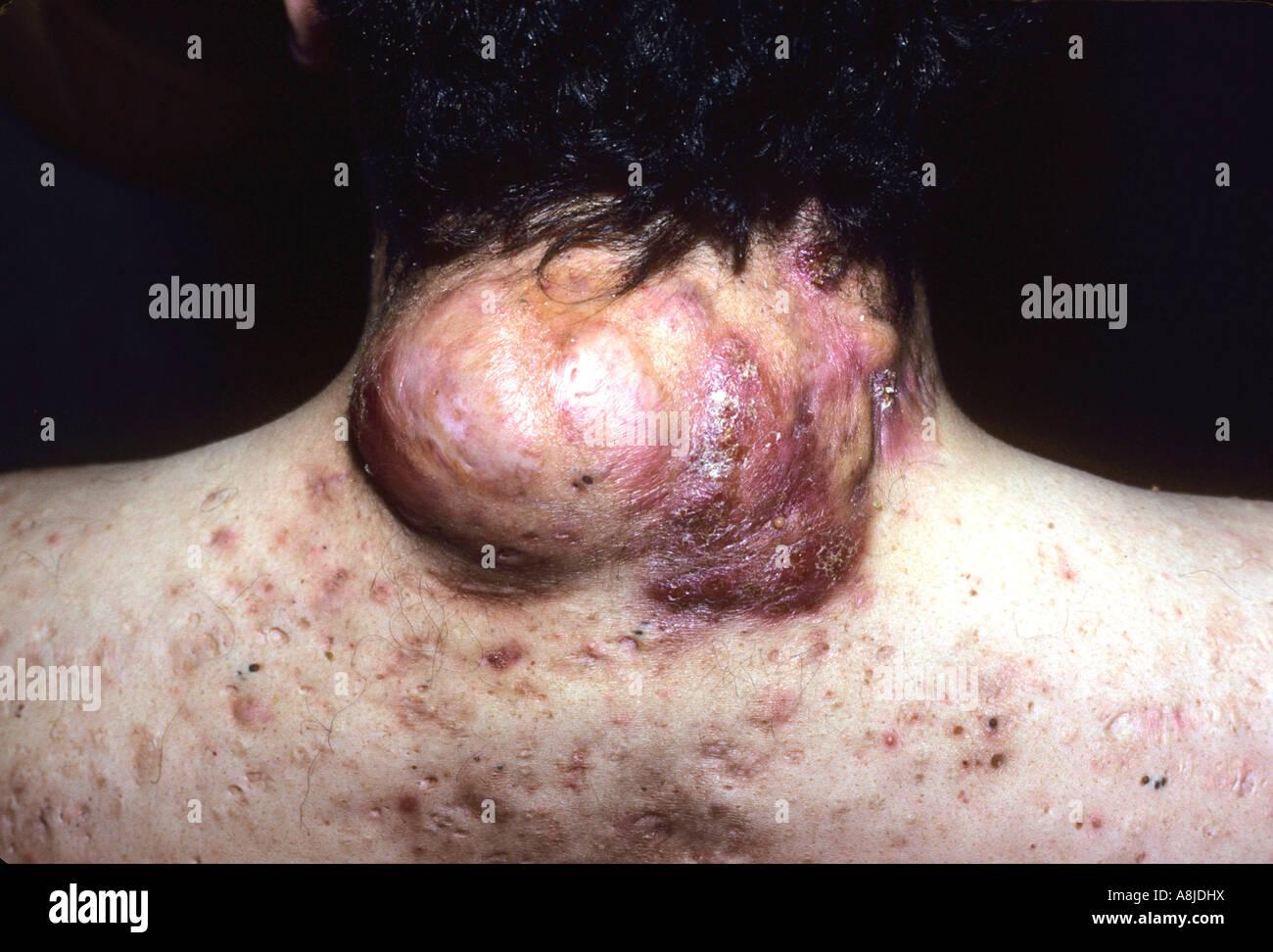 Acne: behandeling opstoten en verwijderen ...