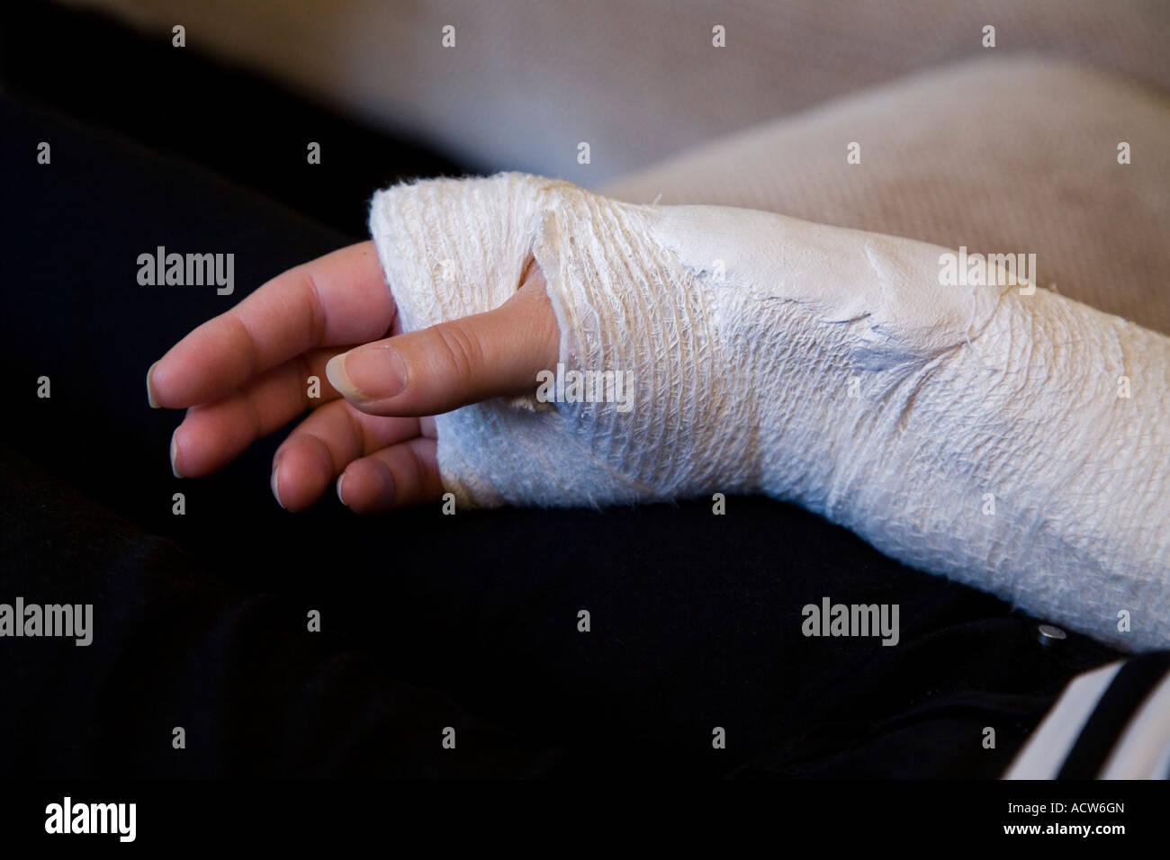 how to set a broken arm