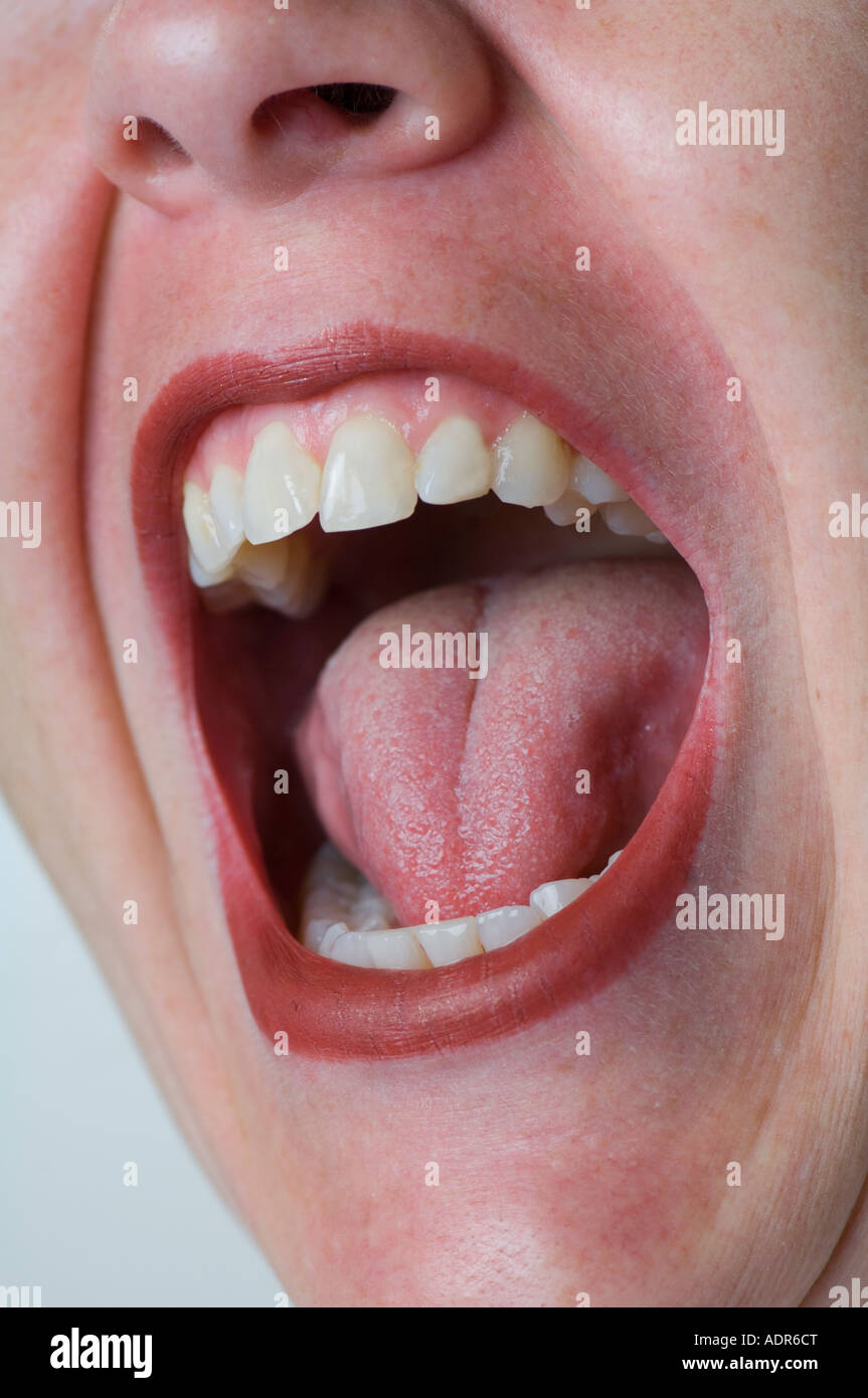 Woman With Mouth Open 35