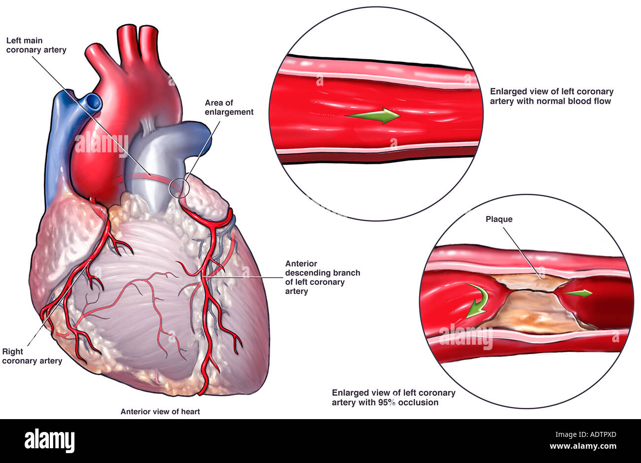 Coronary artery disease leading to fatal heart attack stock photo coronary artery disease leading to fatal heart attack ccuart Images