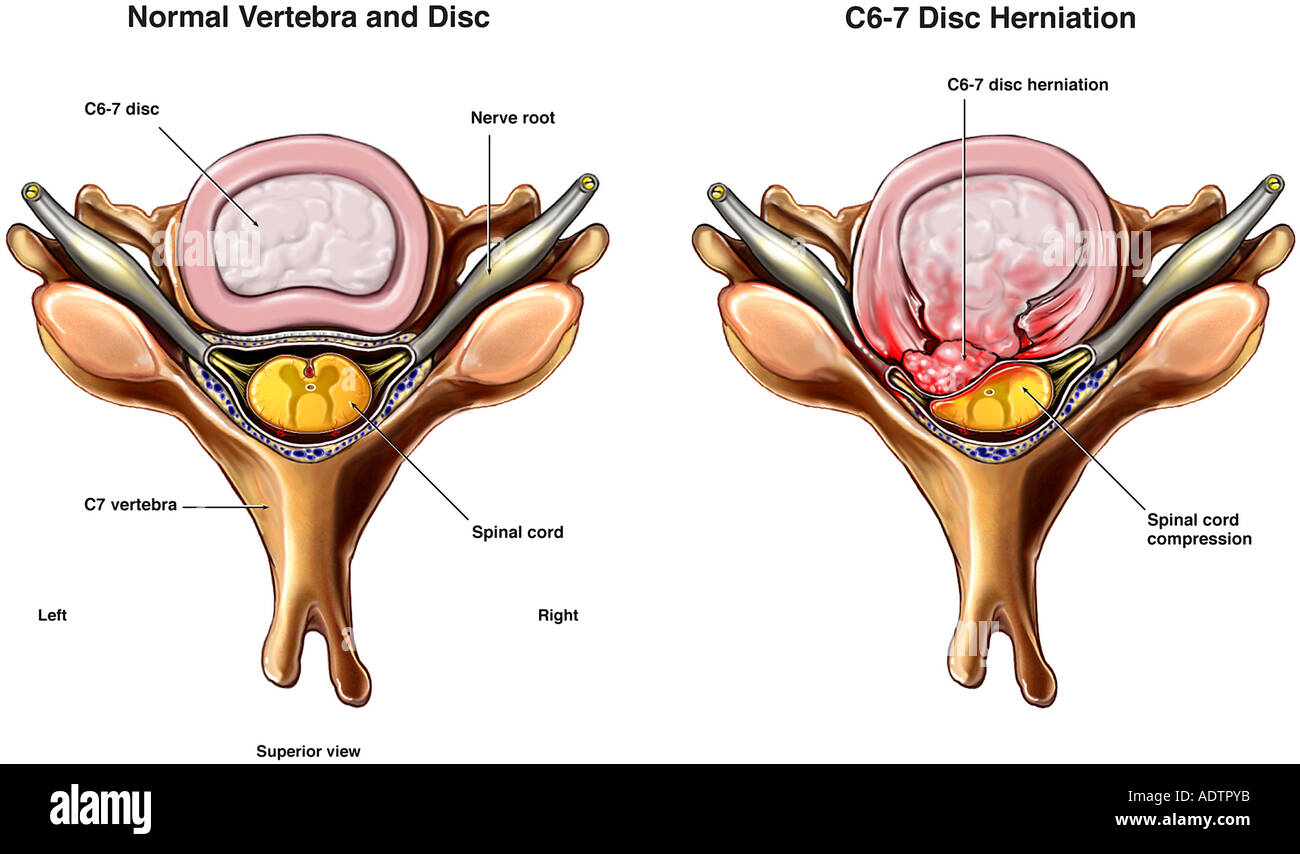 C6-7 Disc Herniation with Spinal Cord Compression Stock Photo ...