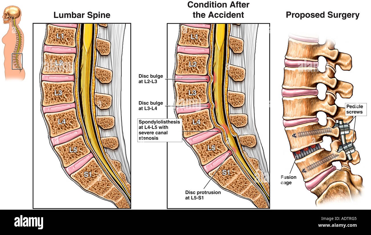 Spondylothesis pain management