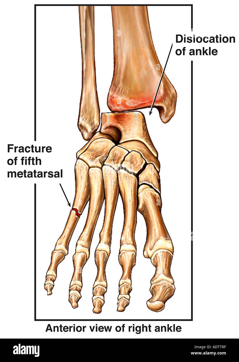 fractured (broken) foot bone and dislocated ankle joint stock, Human Body