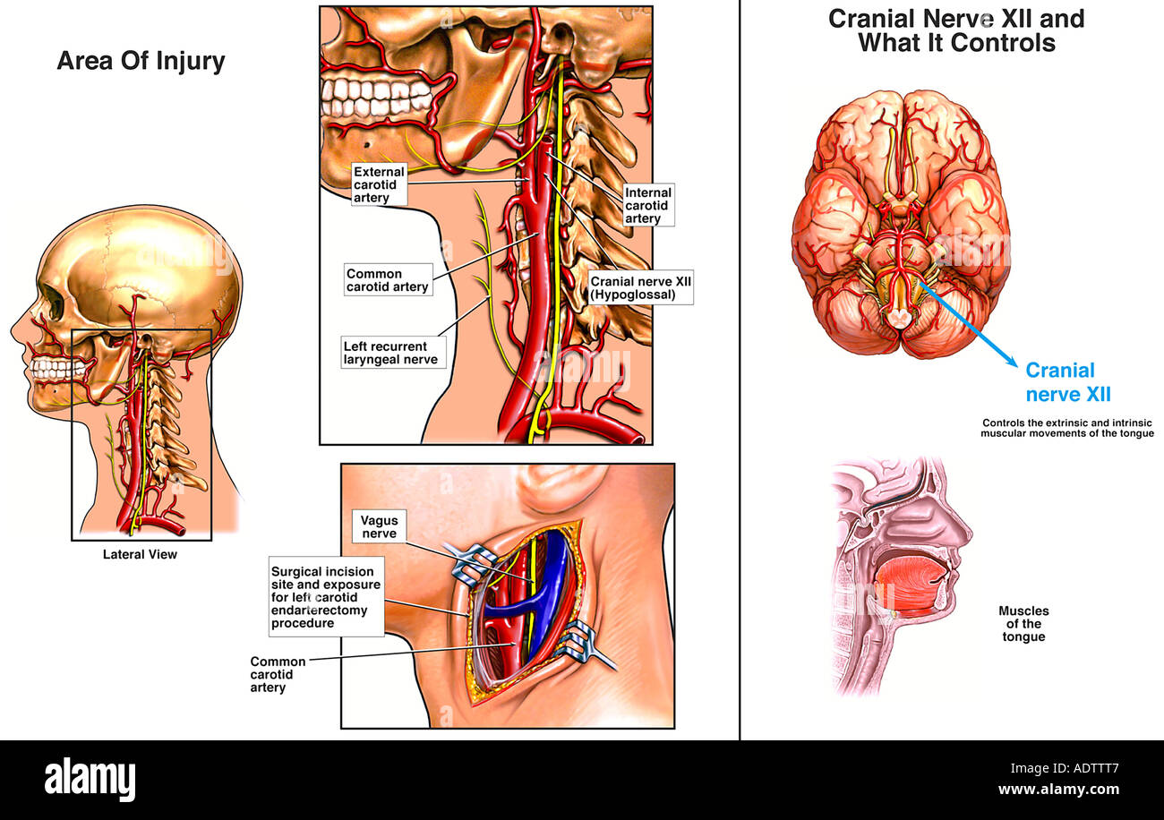 Carotid Endarterectomy with Iatrogenic (Physician-related) Cranial ...