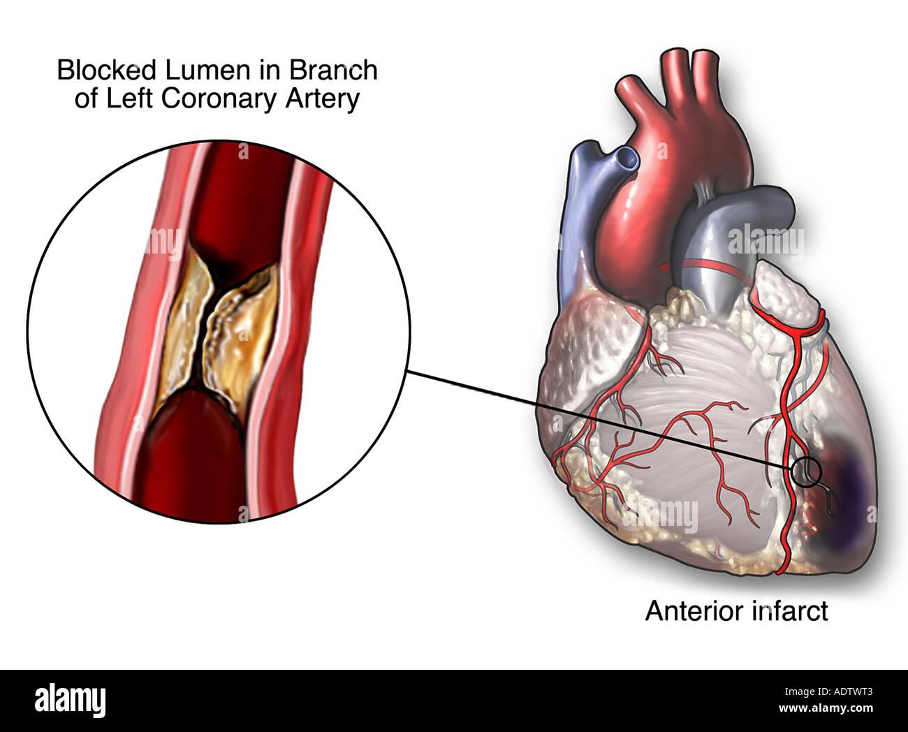 Blocked coronary artery stock photo 7710530 alamy blocked coronary artery pooptronica Image collections