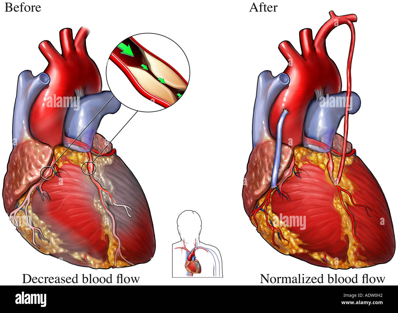Coronary Artery Disease Heart Bypass Surgery Stock Photo