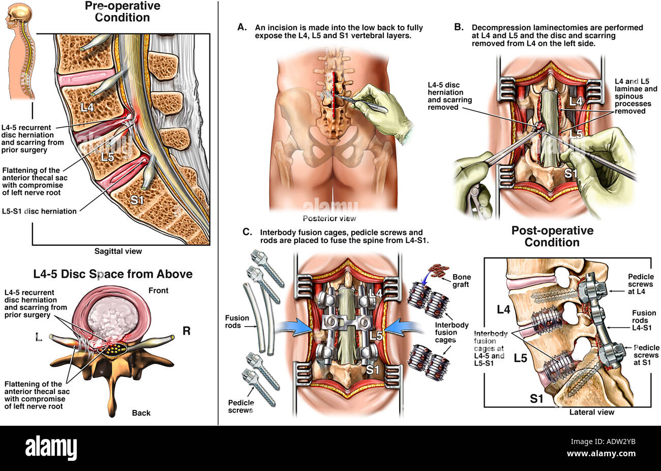 List Of Synonyms And Antonyms Of The Word L4 Pedicle