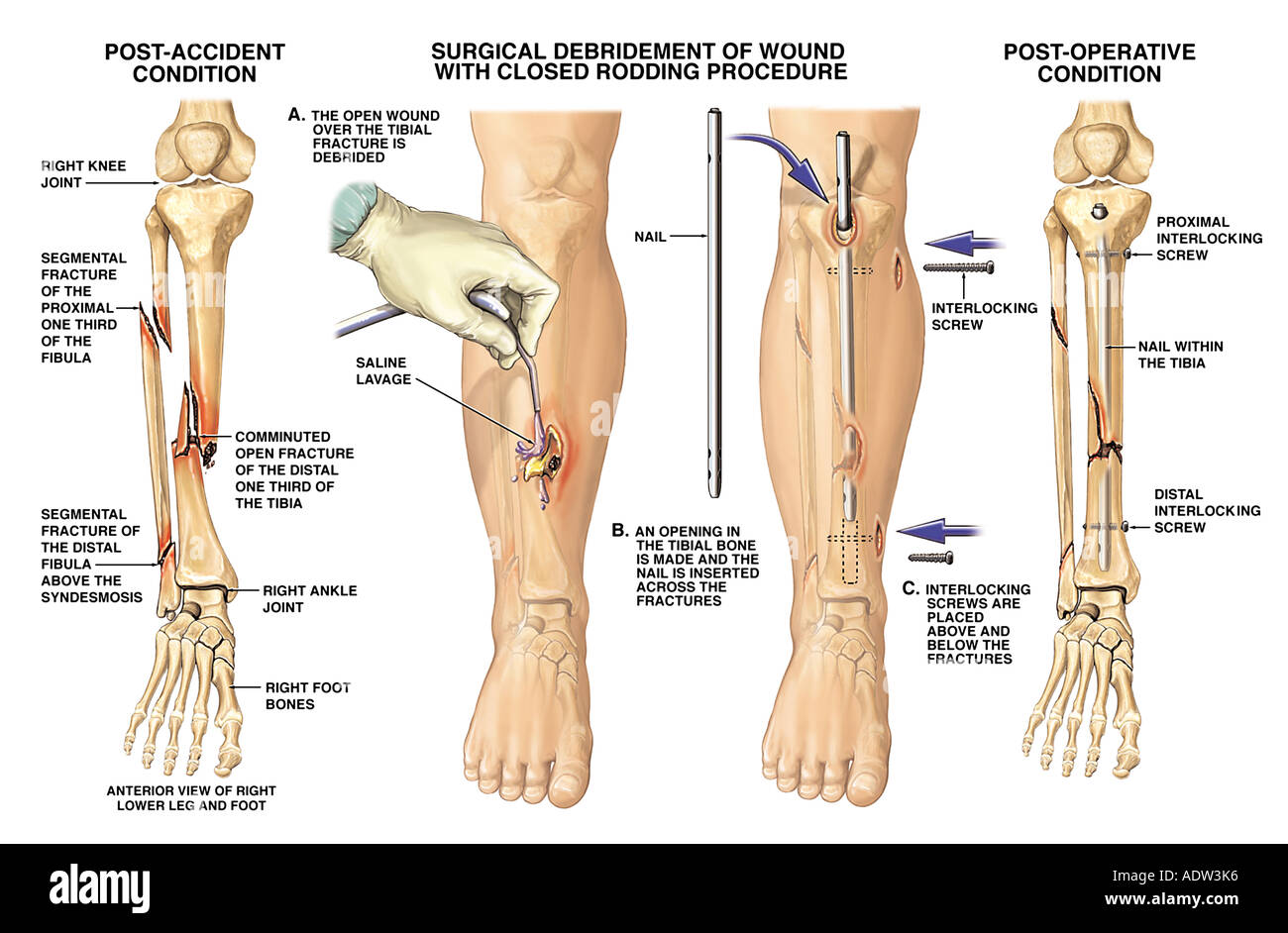 fractured tibia and fibula (broken lower leg bones) with fixation, Human Body