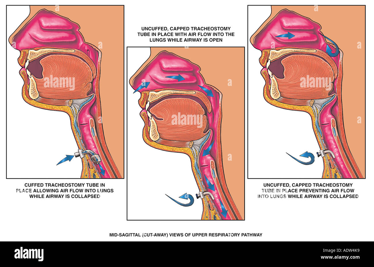 Asphyxiation Blockage of Airway due to Capped Cuffed Tracheostomy ...