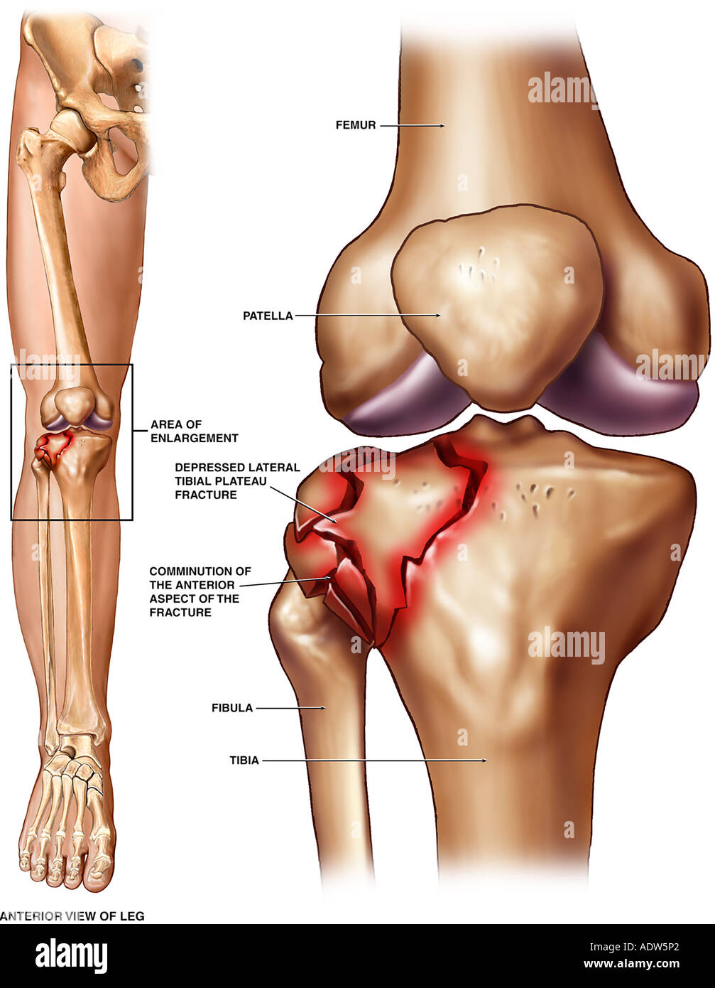 Tibial Plateau Fracture Stock Photo, Royalty Free Image: 7712033 - Alamy