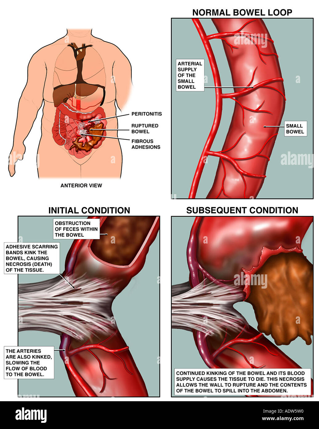 small bowel obstruction stock photos & small bowel obstruction, Skeleton