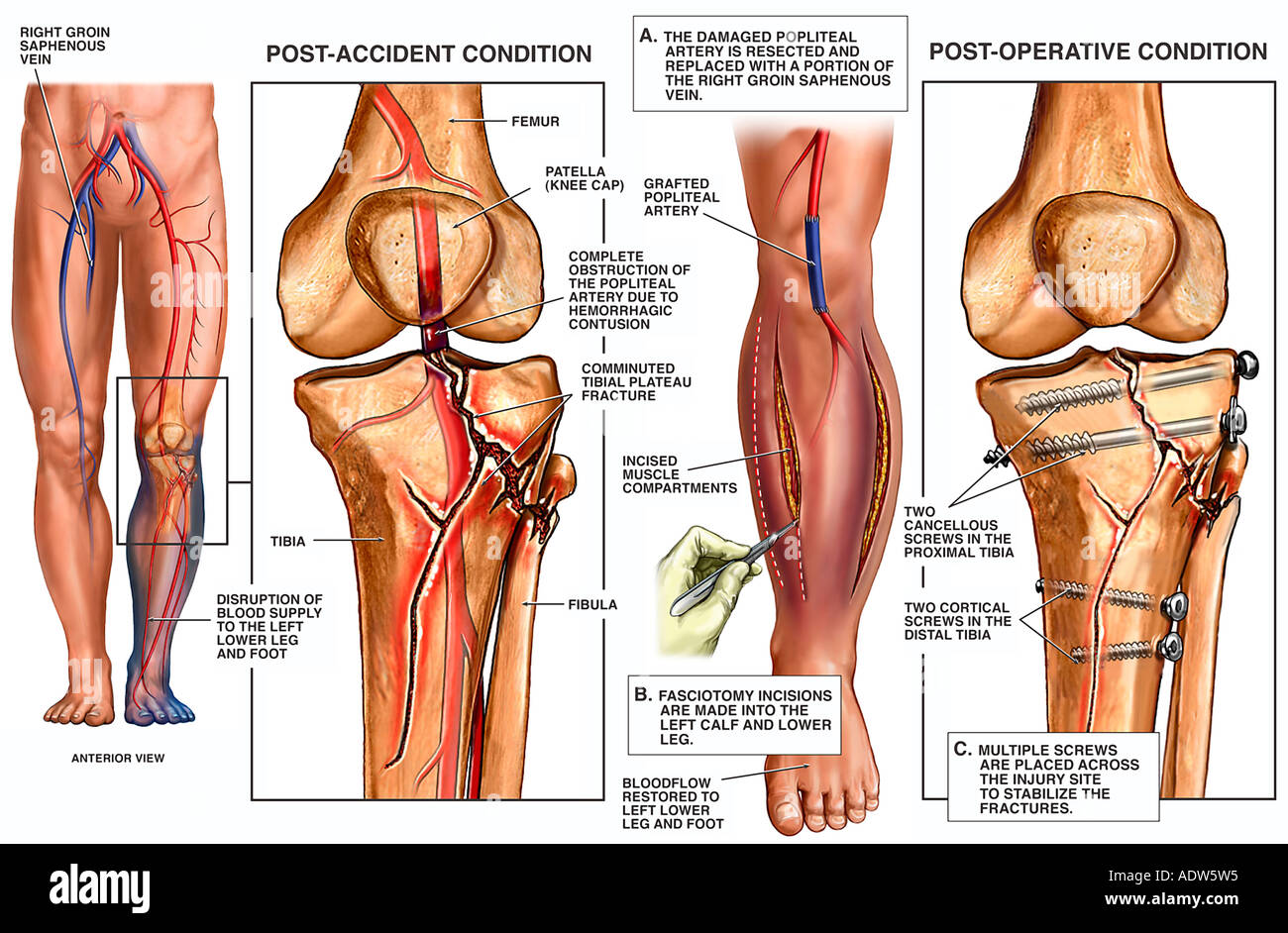 Knee injury tibial plateau fractures with fixation surgery stock knee injury tibial plateau fractures with fixation surgery ccuart Image collections