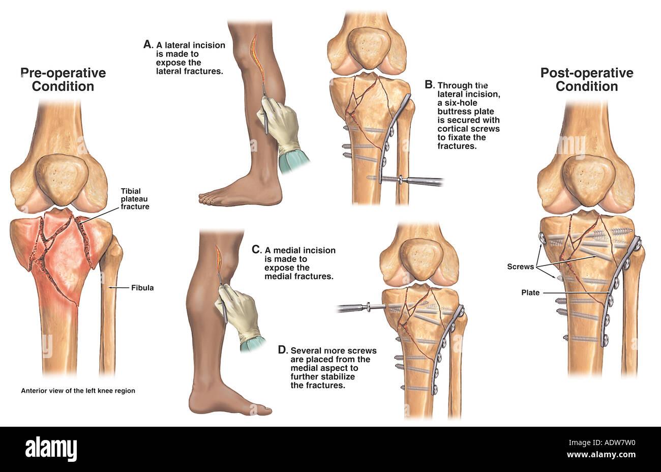 how to tell if your knee cap is broken