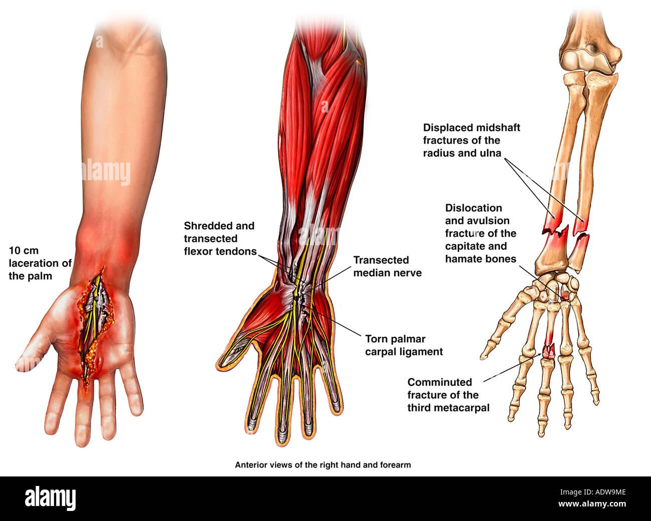 Tendon Anatomy Of The Hand 8933307 Es Youlandfo