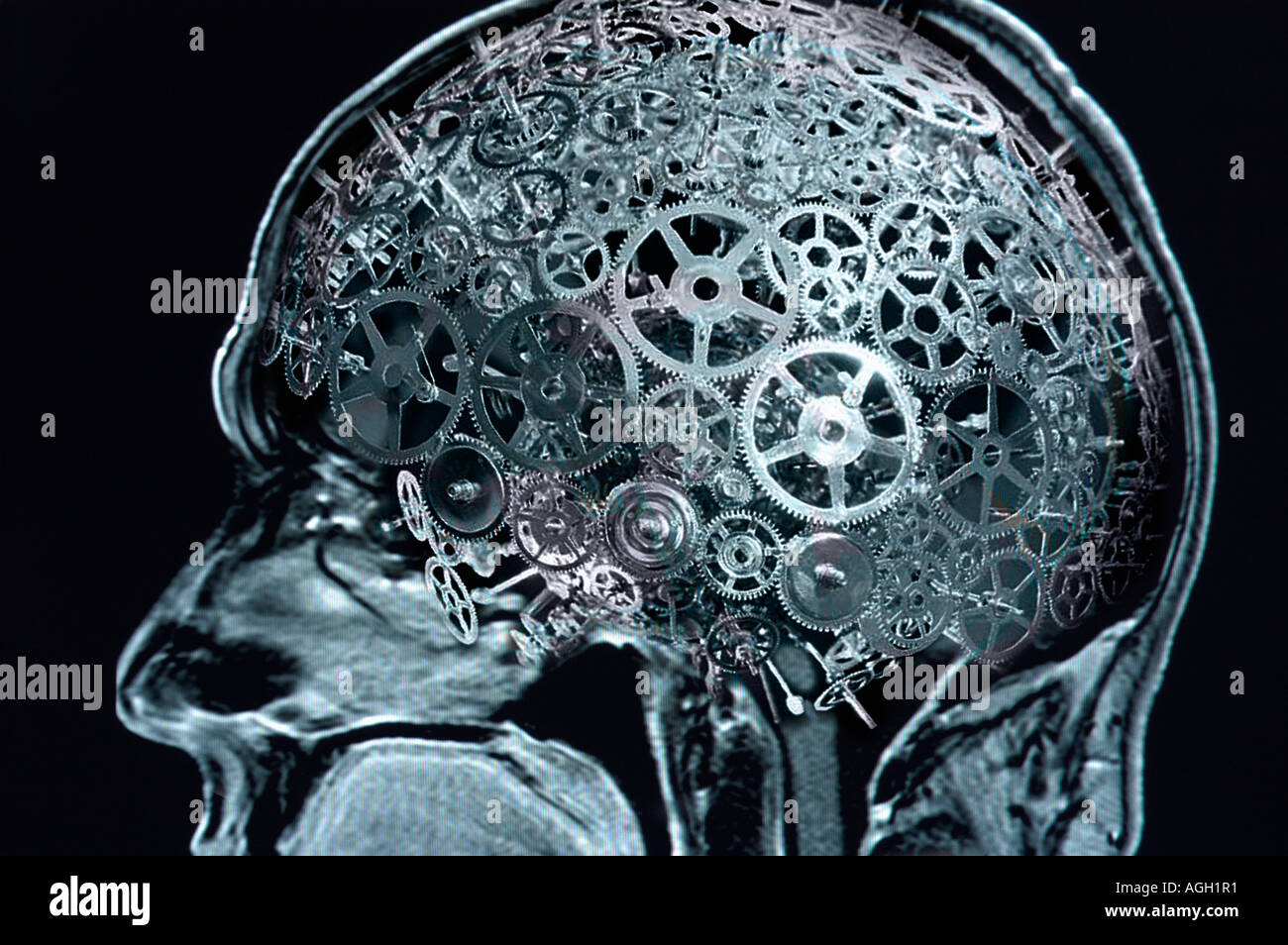 the complexity of human brain The superior size and complexity of the human brain compared to other  mammals may actually originate from fewer initial starting materials,.