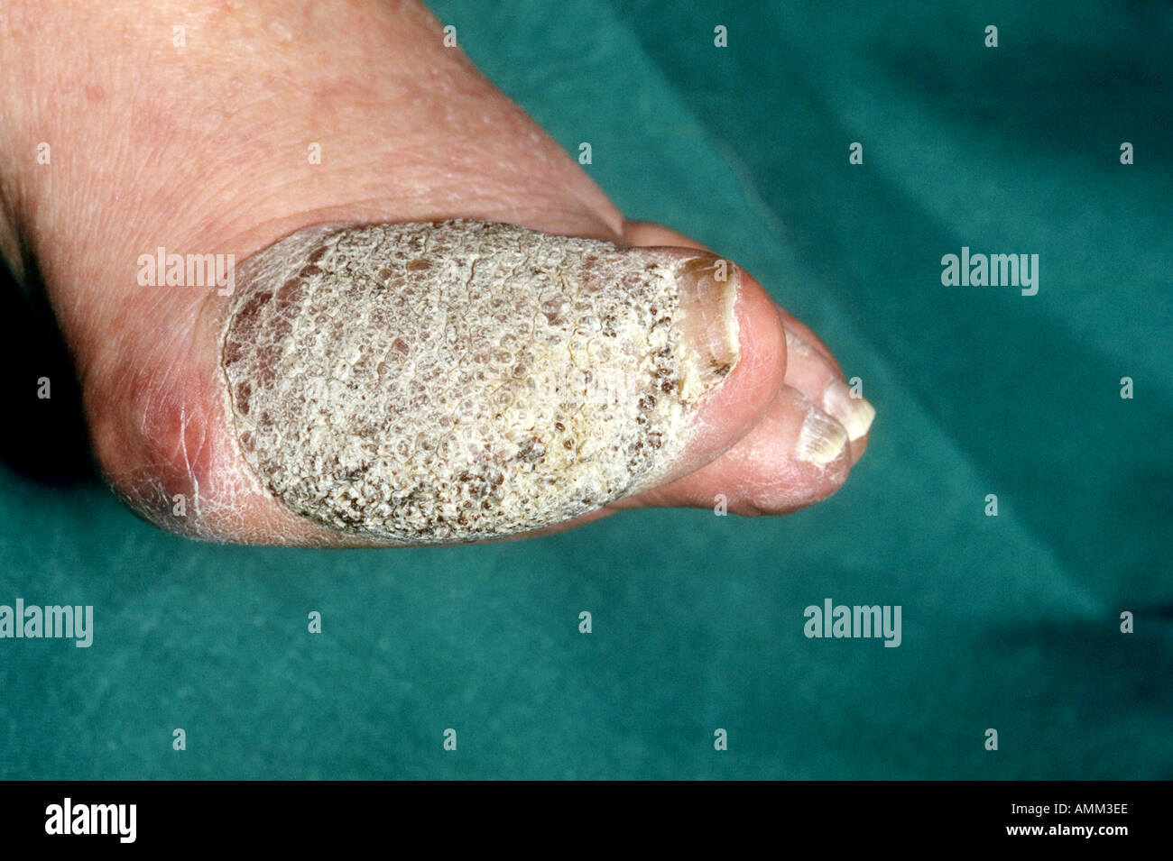 large wart on big toe stock photo royalty free image