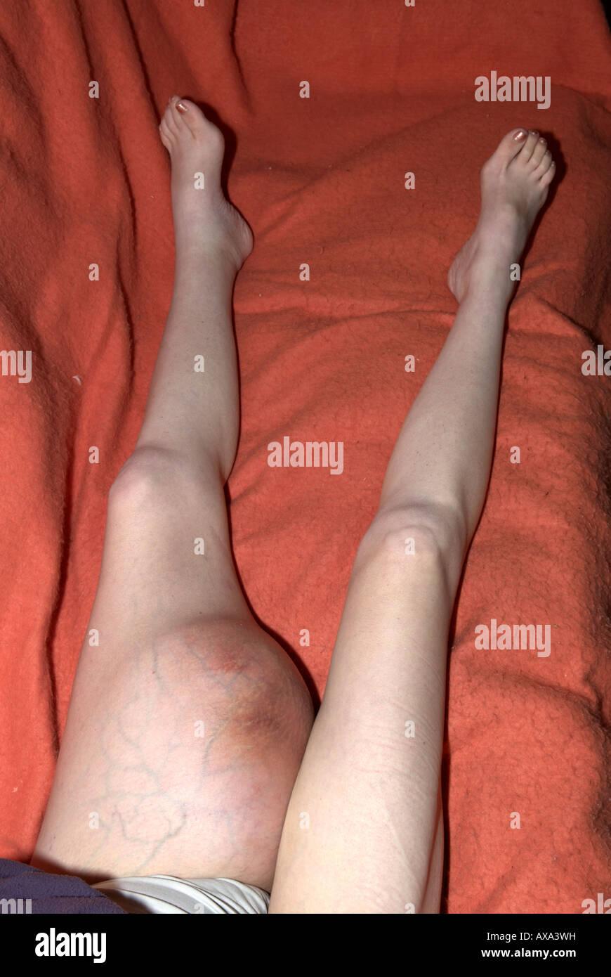how to break up scar tissue in knee