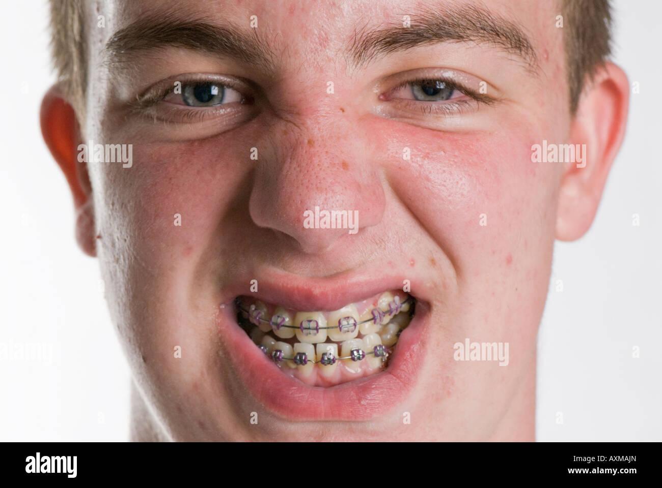 Acne Teen Stock Photos & Acne Teen Stock Images - Alamy