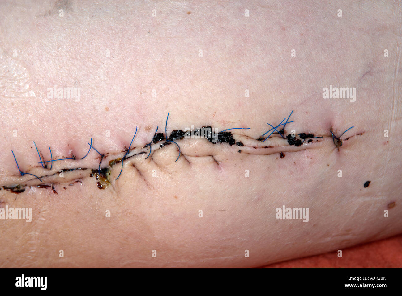 Close up of stitches on left inner thigh from operation to remove ...