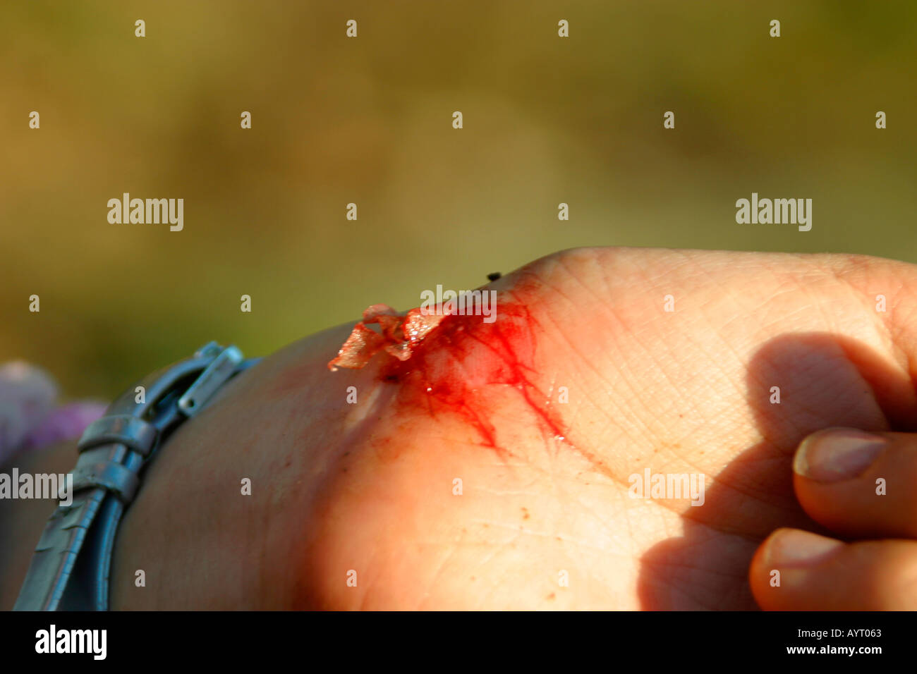 Young girls hand with cut blood and flap of skin Stock Photo ...