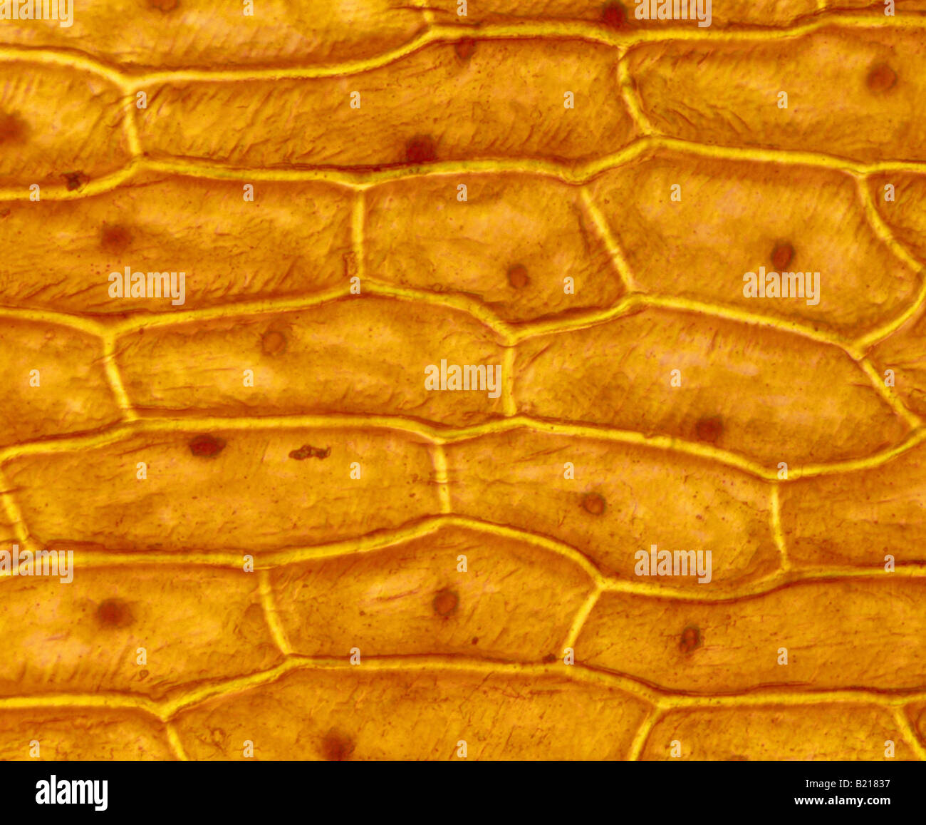 Onion Cells Stained With Iodine Under Microscope Onion Epidermal Cell Stained