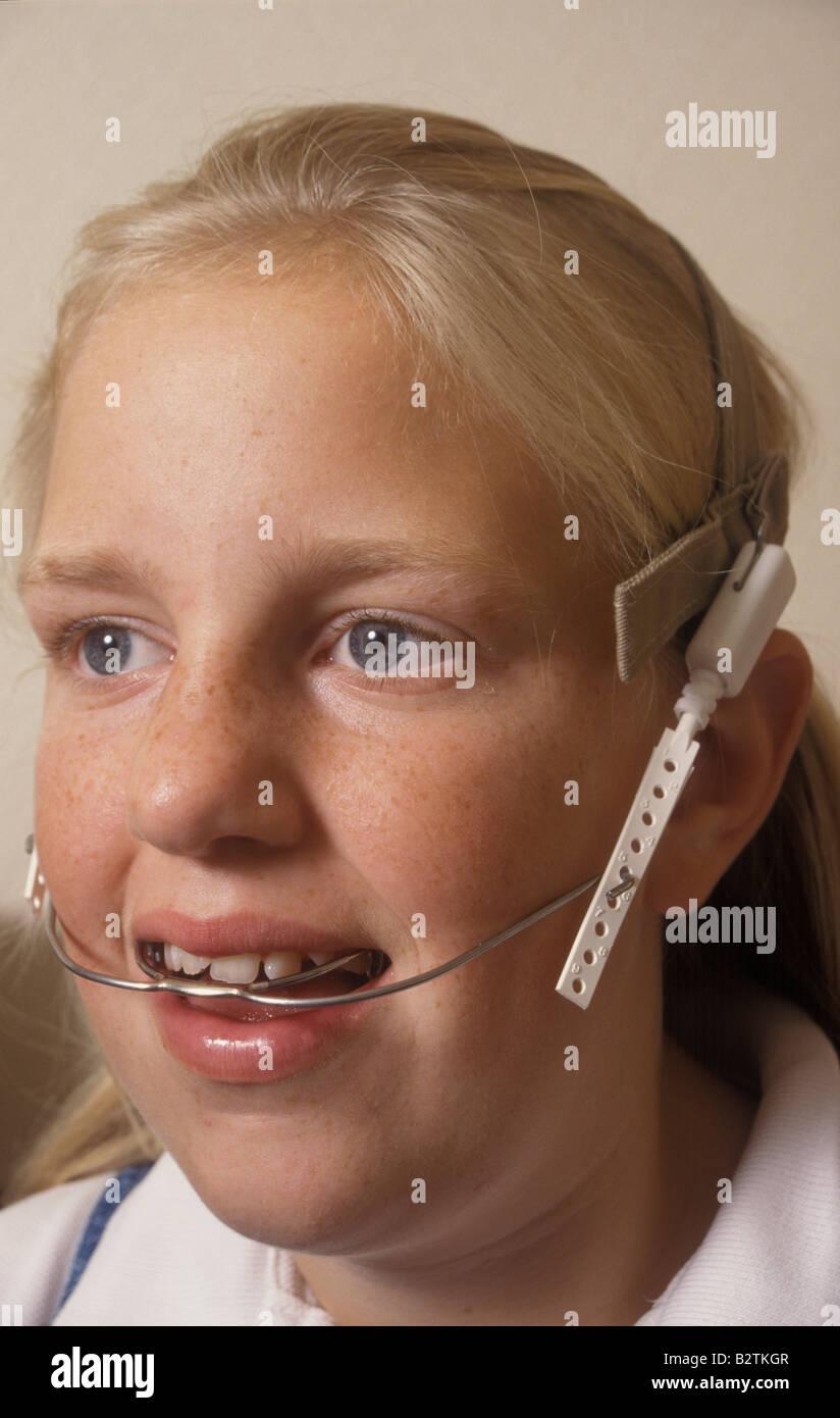 Girl with braces headgear porn