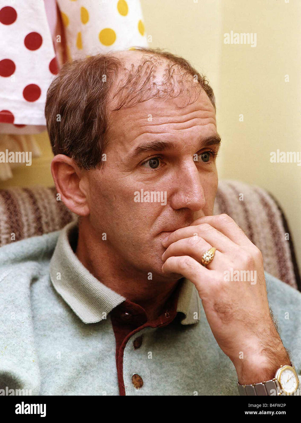 Russ Abbot in a theatre dressing room shows his Hair Transplant Mirrorpix Stock Photo - russ-abbot-in-a-theatre-dressing-room-shows-his-hair-transplant-mirrorpix-B4FW2P