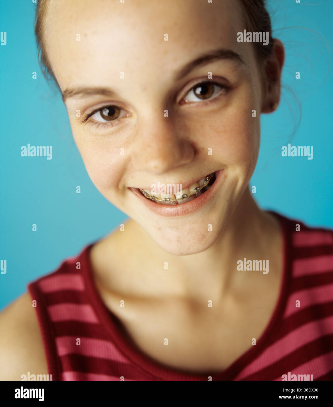13 Year Old Boy Bedrooms: Dental Braces Fixed To The Teeth Of A 13-year-old Girl