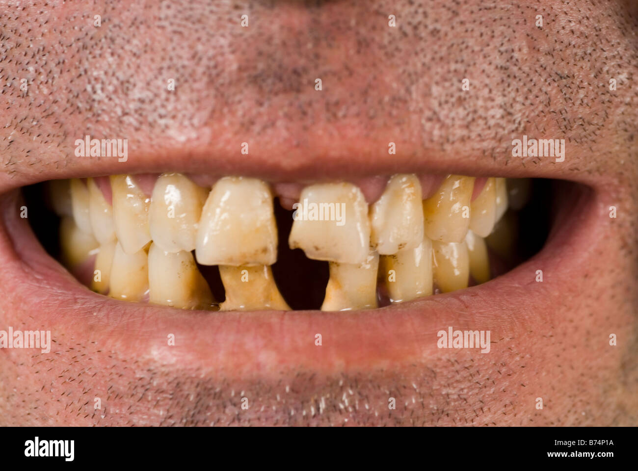 Dating someone with bad teeth