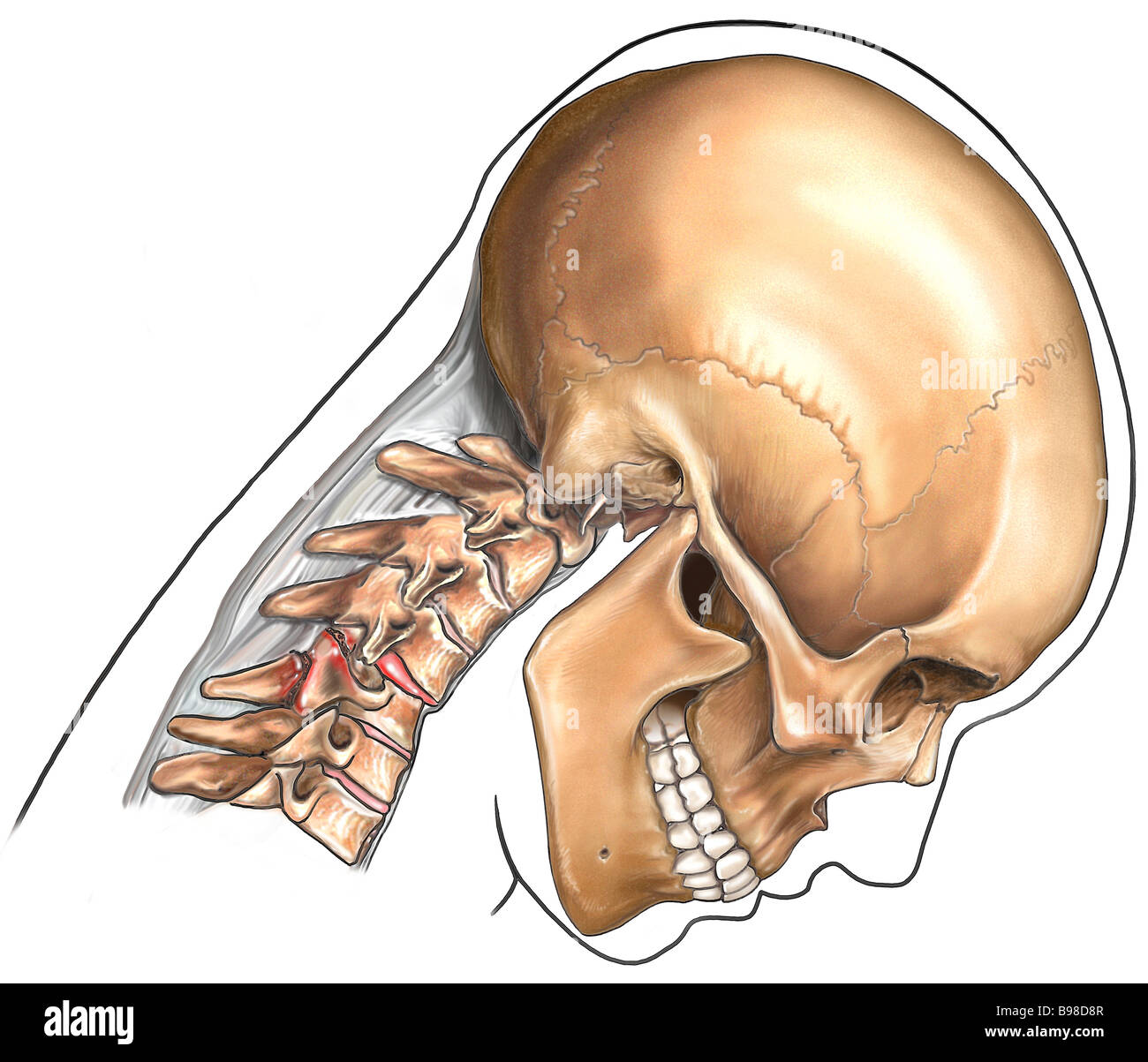 Cervical Spine Fracture (C4/C5 Stock Photo, Royalty Free Image ...