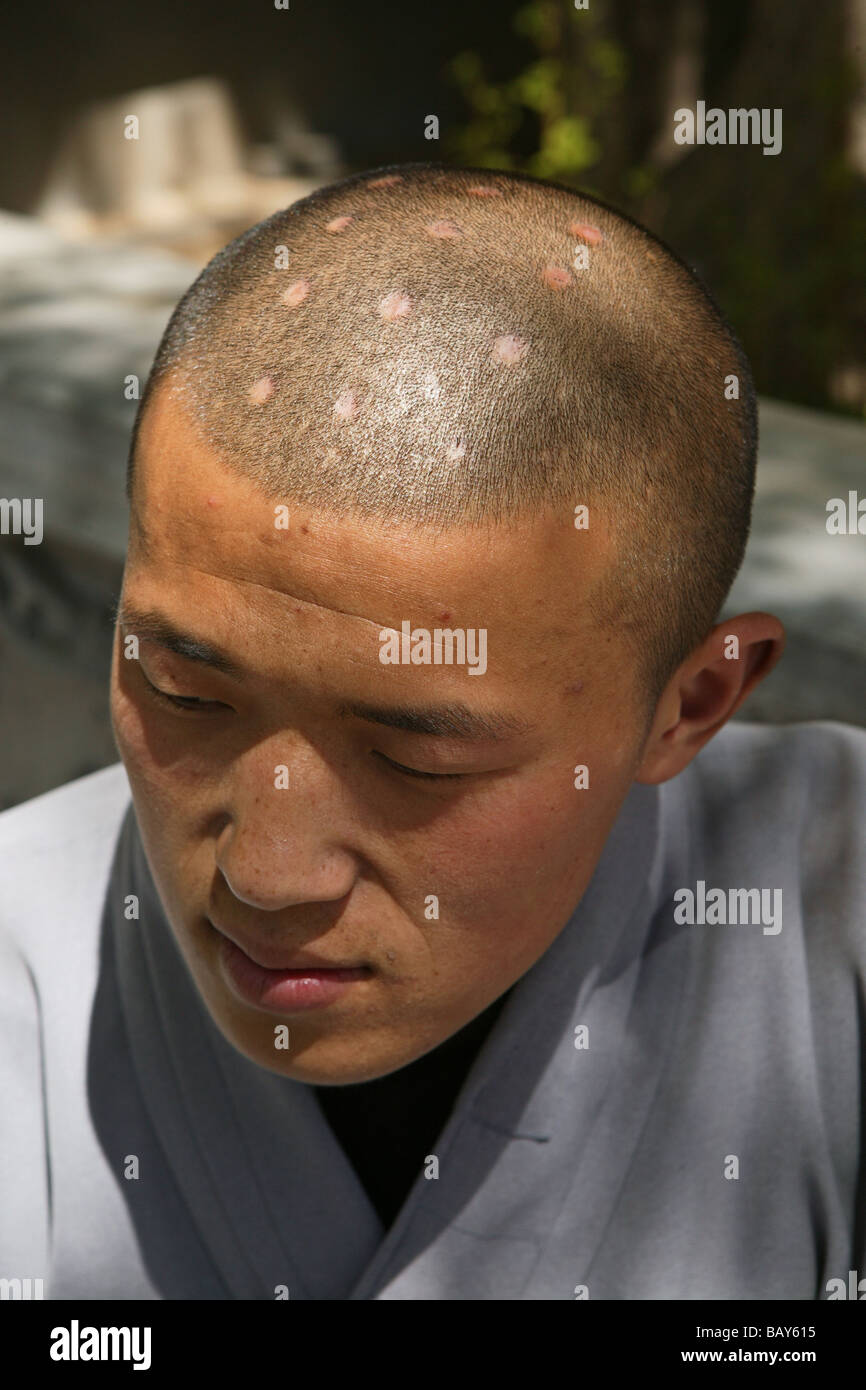 Shaolin monk with symbolic burn marks on his shaven head shaolin shaolin monk with symbolic burn marks on his shaven head shaolin monastery known for shaolin boxing taoist buddhist mountain buycottarizona Image collections