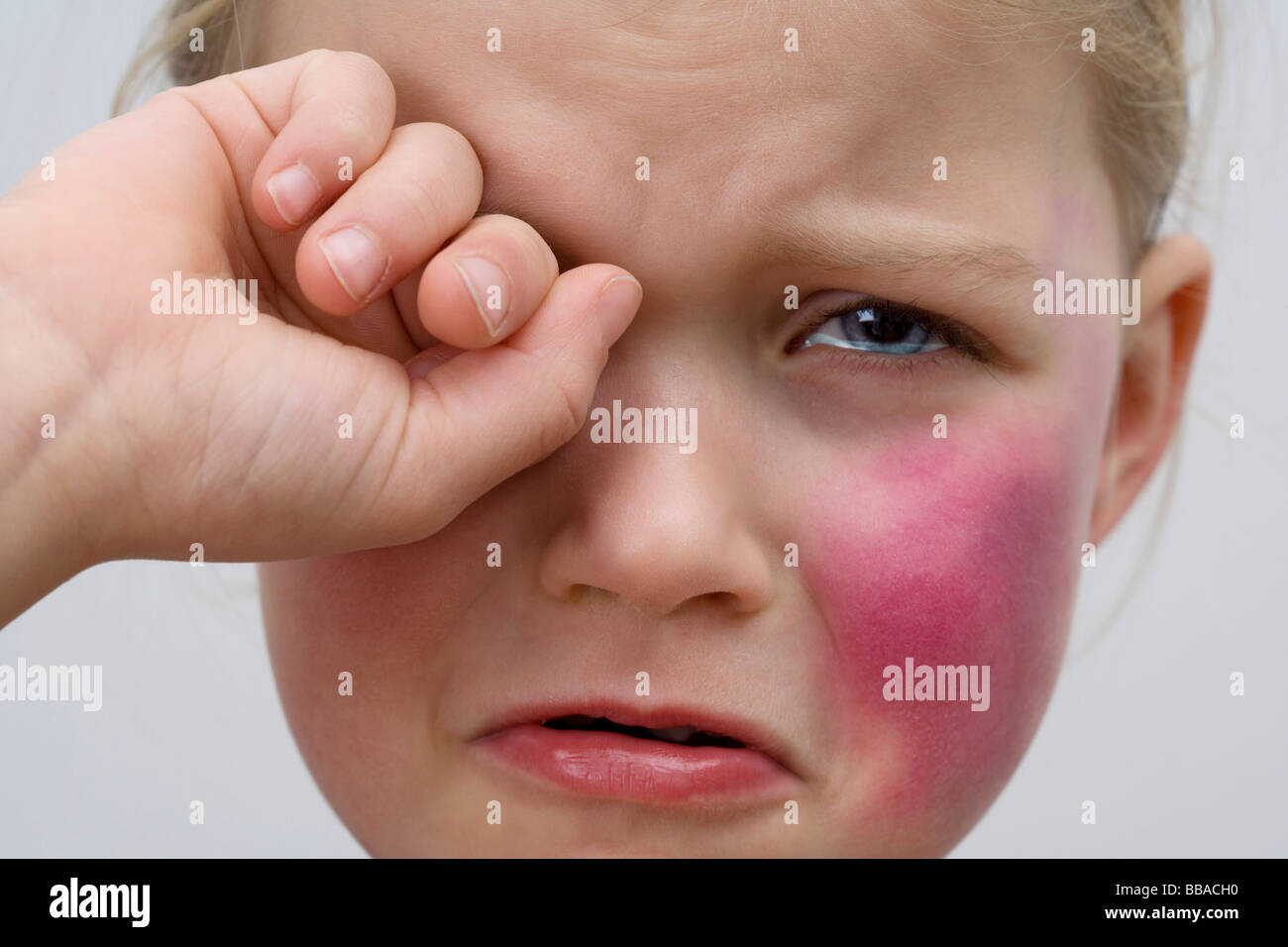 A little girl with a bruise on her cheek crying Stock ...