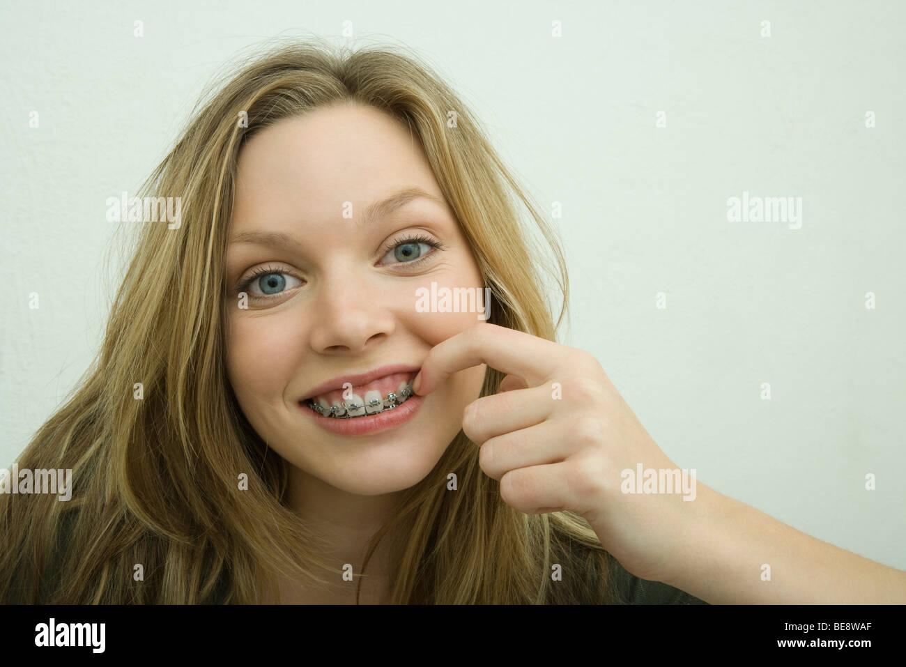 Teens Teeth 121