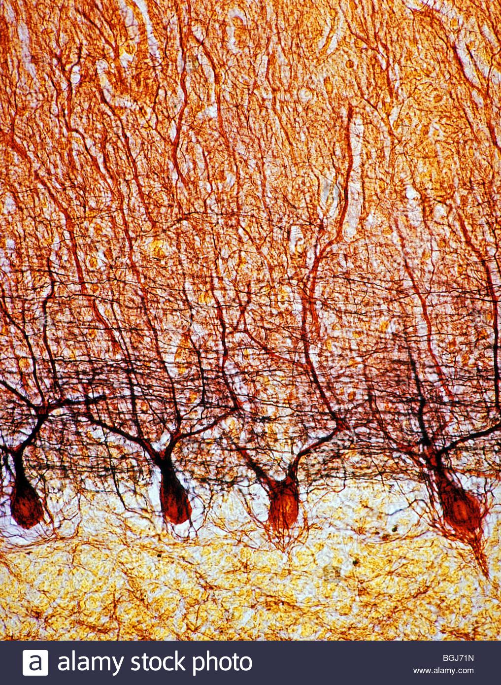 cerebellum purkinje cells 150x stock photo royalty