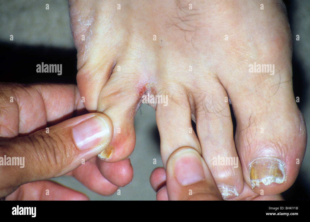 Athletes Foot Stock Photos & Athletes Foot Stock Images - Alamy