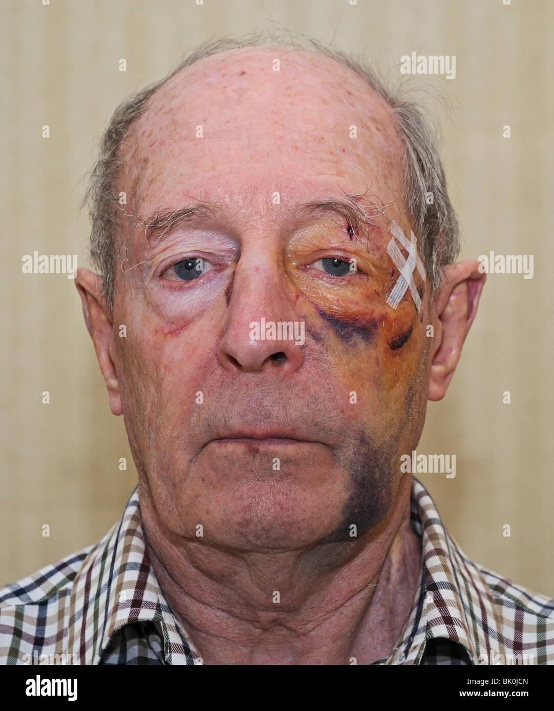 Facial Wounds 31