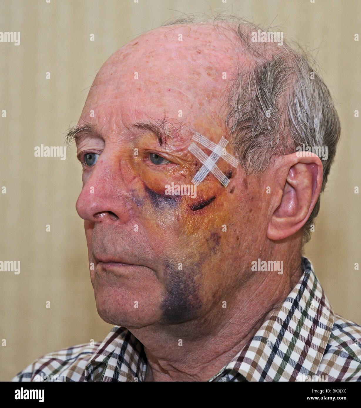Facial Wounds 114