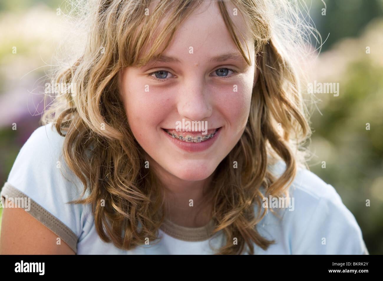 Teen Smiles 105