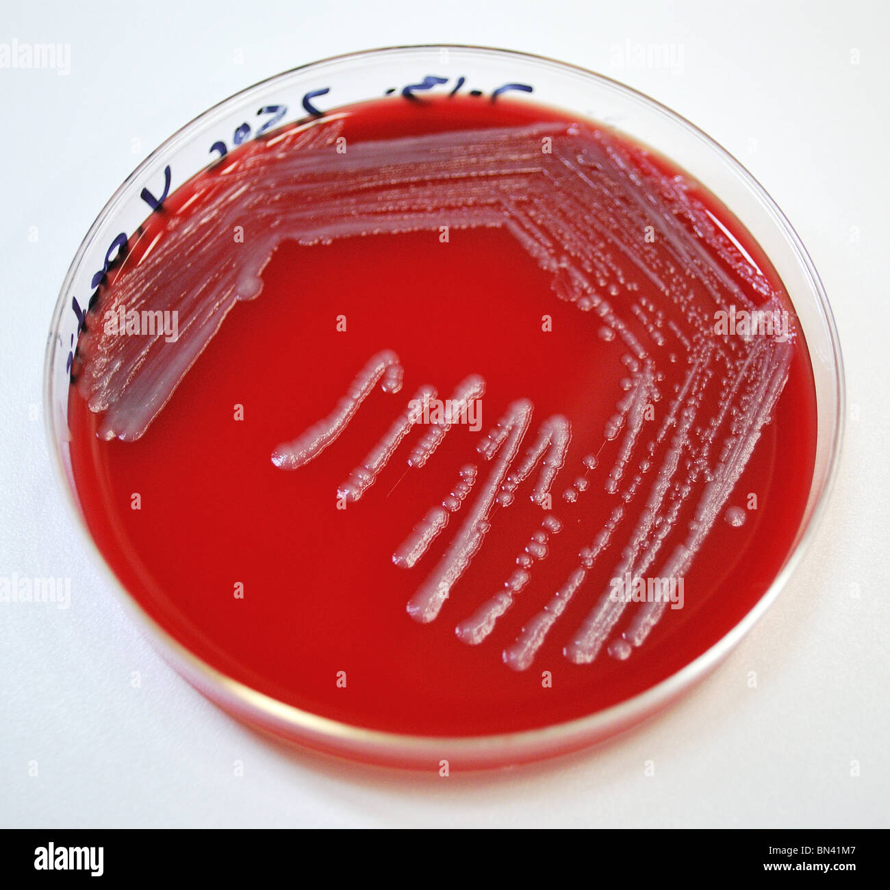yersinia pestis Yersinia pestis is a bacillus it is a bacterium it has been identified as the infectious agent of bubonic plague this bacterium also causes other forms of plague.