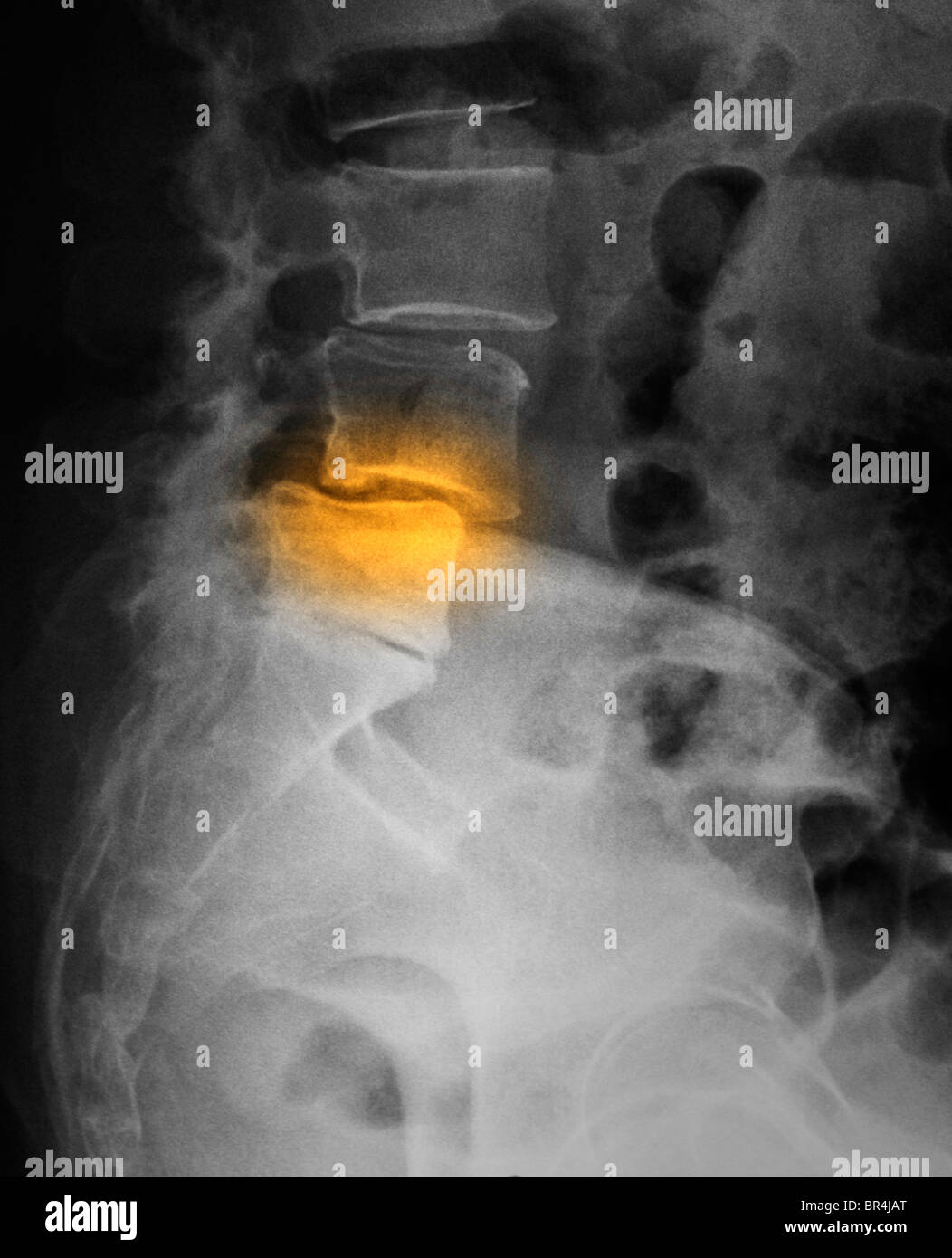 http://c8.alamy.com/comp/BR4JAT/x-ray-showing-spondylolisthesis-of-the-lumbar-spine-BR4JAT.jpg