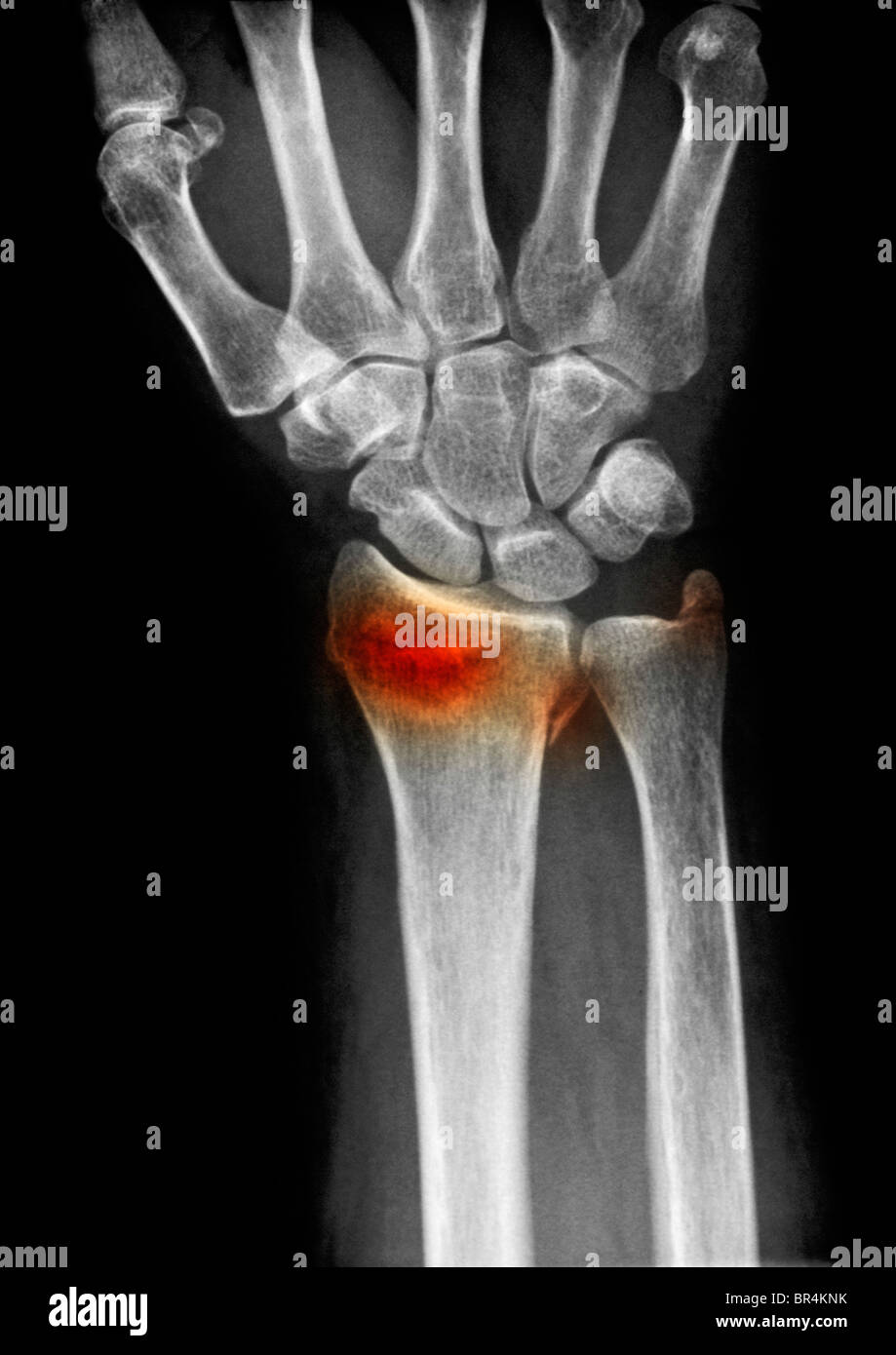 wrist xray of a 63 year old woman who fell and fractured