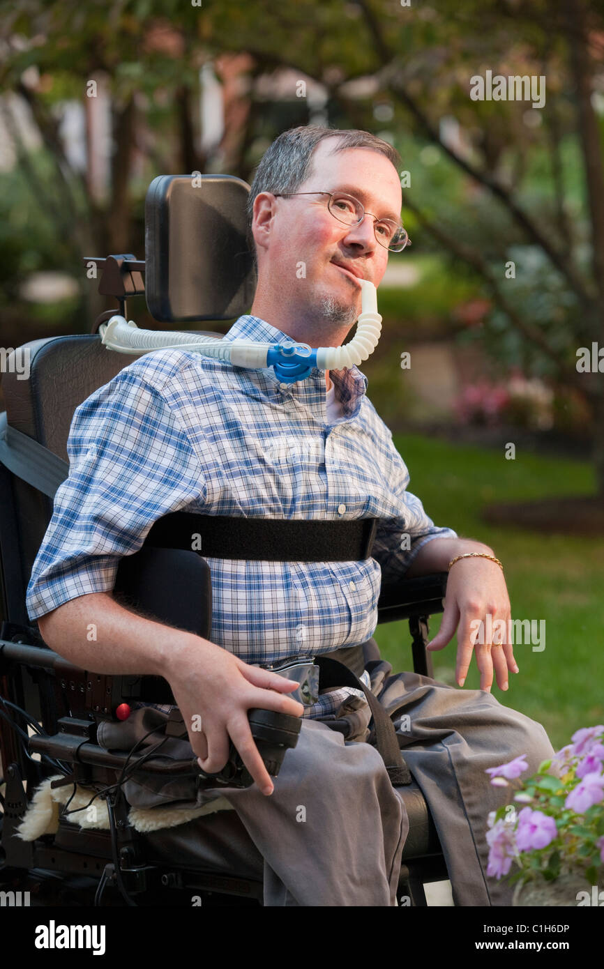 dating someone with muscular dystrophy Muscular dystrophy the outlook for people with md nmd, solutions acupuncture, a private practice specializing in complementary and alternative medicine.