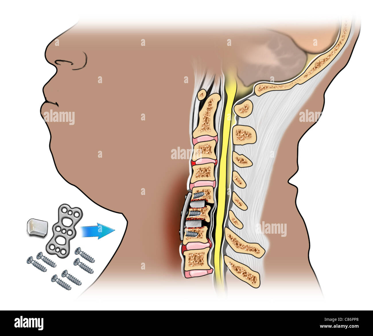 cervical bone fusion of c5 6 and c6 7 stock photo royalty free image 39487568 alamy. Black Bedroom Furniture Sets. Home Design Ideas