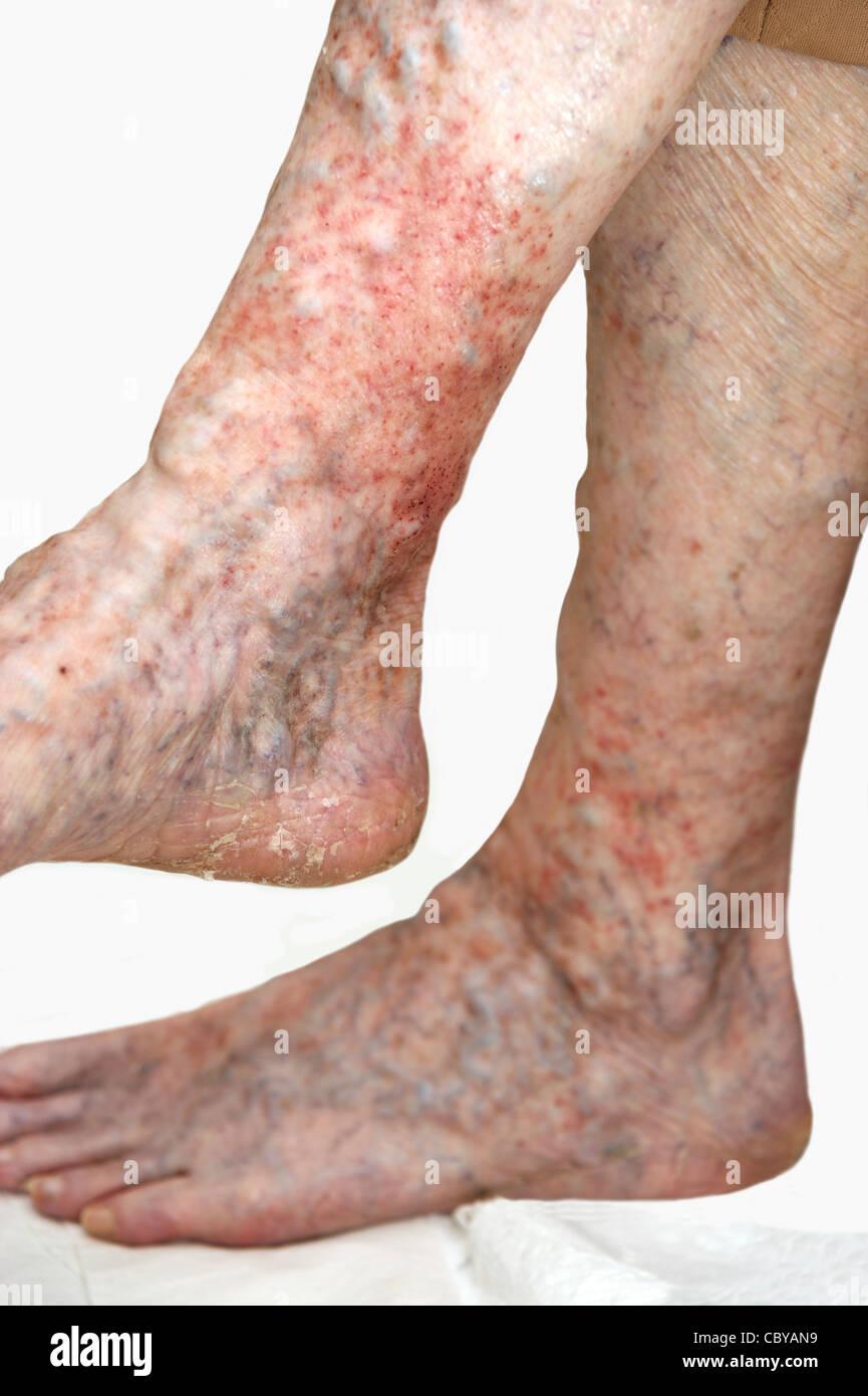 Elderly woman's legs suffering from eczema & varicose ...